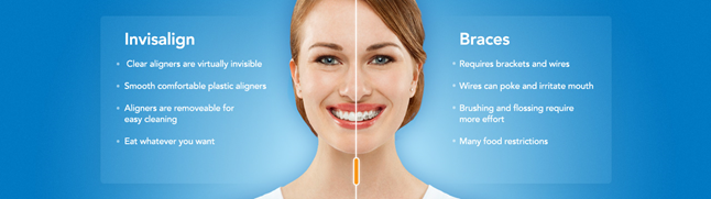 invisalign-1.png