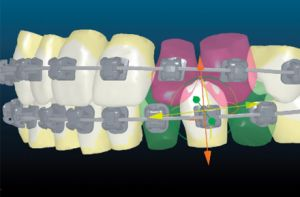 orthodontic-methods-insignia-custom-braces.jpg
